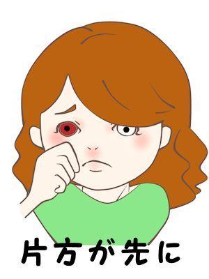 流行性角結膜炎02 - コピー